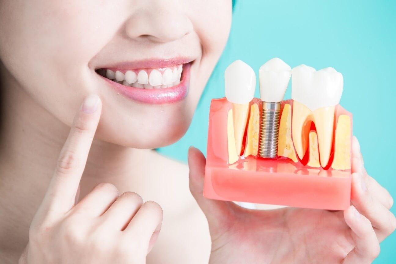O que você precisa saber sobre implantes dentários?