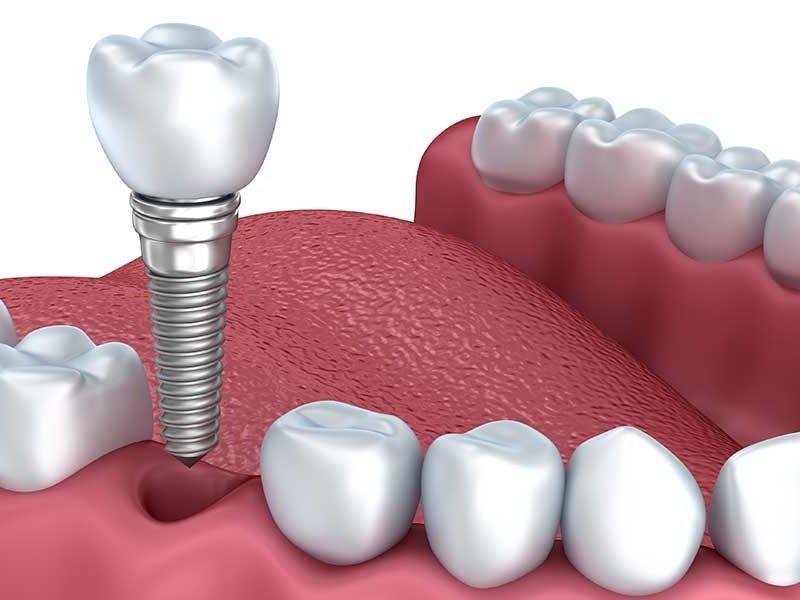 A confiabilidade e a durabilidade dos implantes