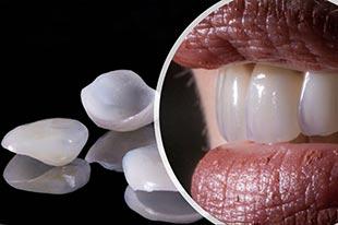 Odontologia Estética – Lentes de Contato